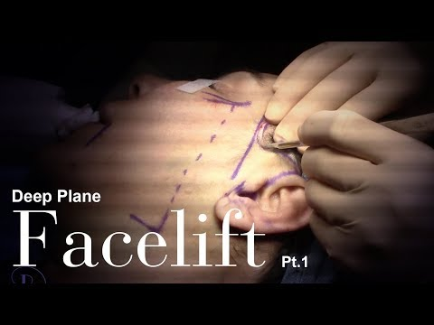 FACELIFT SURGERY - Pearlman Aesthetic Surgery (Pt.1)
