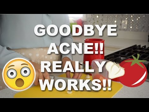 BEST HOME REMEDY FOR GETTING RID OF ACNE!!