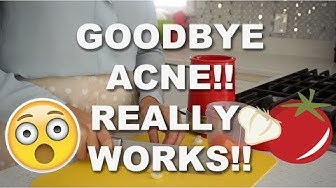 hqdefault - How To Get Rid Of Face Acne Fast At Home