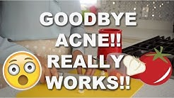 HOW TO GET RID OF ACNE! BEST HOME REMEDY FOR GETTING RID OF ACNE!!