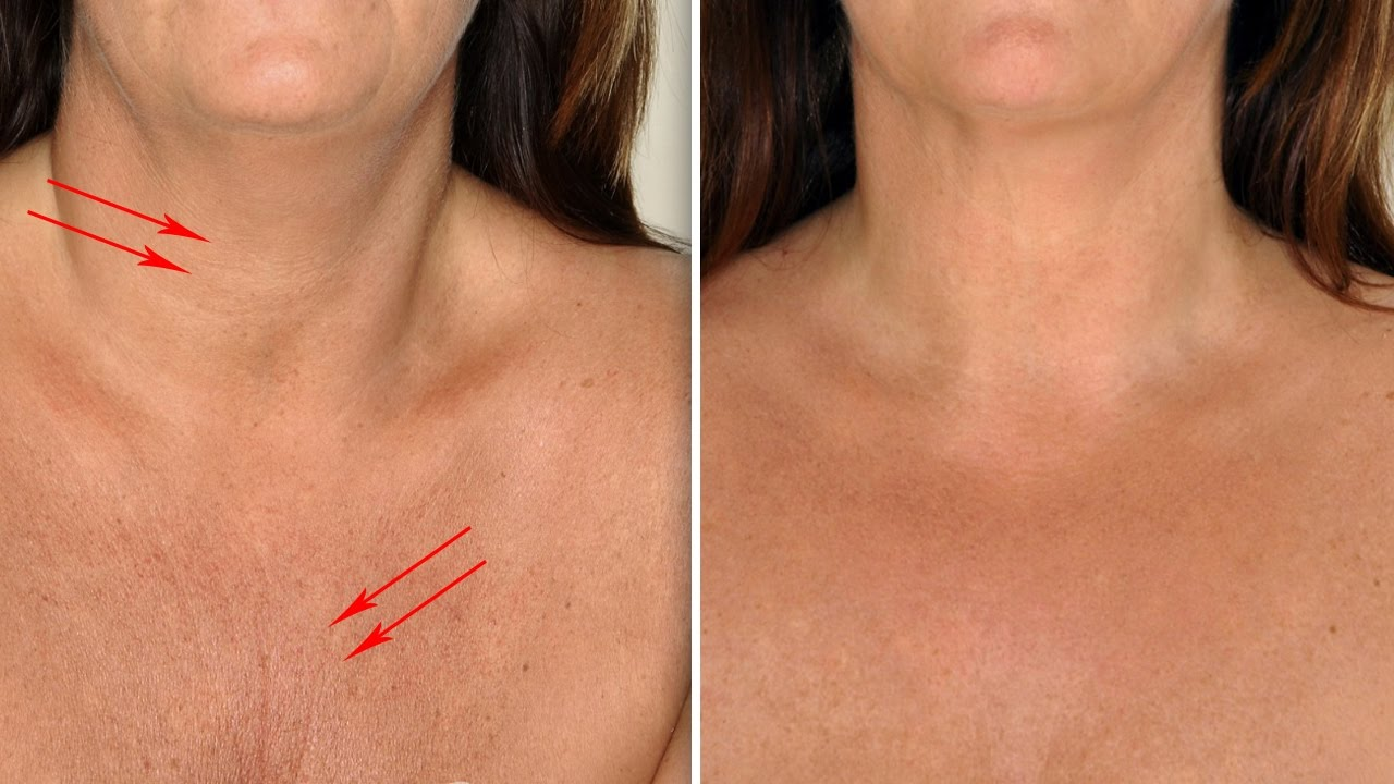 Do You Know What Turkey Neck Is  Learn The Causes And How