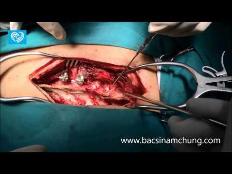 Thoracic dislocation T4-T5 screw fixation(Phẫu thuật gãy trật đốt sống ngực T4 T5)
