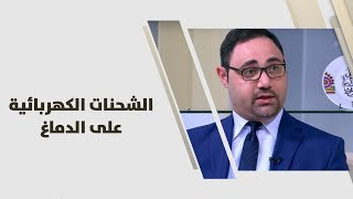 د. محمد خريم - الشحنات الكهربائية على الدماغ - طب وصحة