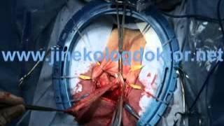 Vaginaplasty -Vajina Daraltma Ameliyatı-