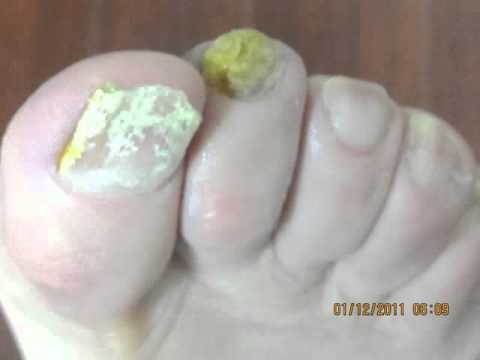 Nail Fungus Laser Treatment-Amazing Result-Before-After Pictures