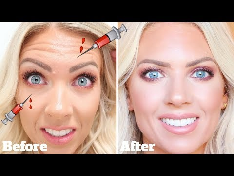 BOTOX Touch Up at LaserAway | Before/After & Actual Procedure