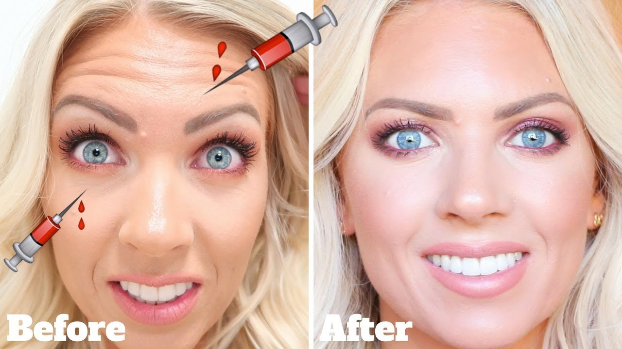 BOTOX Touch Up at LaserAway | Before/After & Actual ...