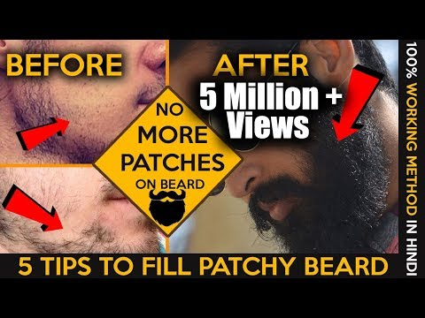 Thumbnail: 2017 How to fill patchy beard | Homemade tips | Patchy beard fix in hindi | Fashionable Brat Rg
