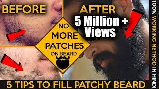 2017 How to fill patchy beard    Homemade tips   Patchy beard fix in hindi   Fashionable Brat Rg