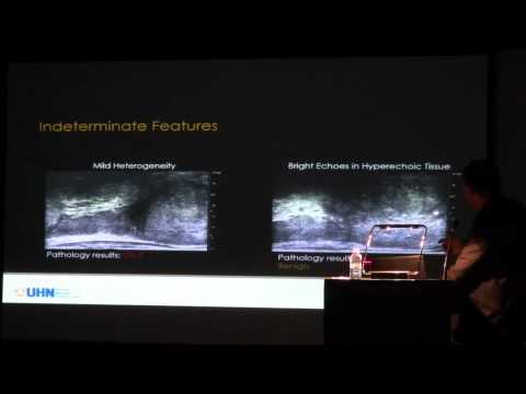 Dr. Sangeet Ghai ExactVuTM micro-ultrasound system for targeted real-time biopsies