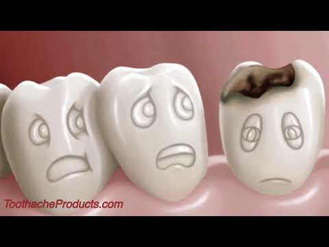 how-much-does-a-tooth-filling-cost