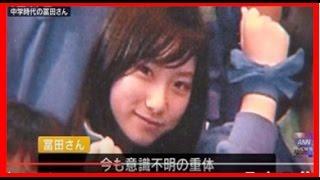 【冨田真由さん容態】冨田真由さんの刺された箇所が判明…⇒左目4回、右目1回、口3回刺され顔面崩壊する。。。後遺症がヤバイと話題に・・・
