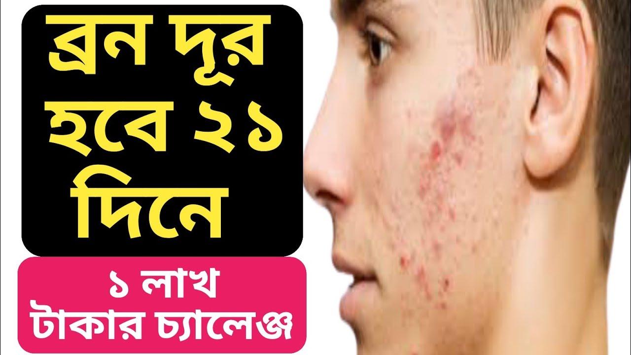 ব্রন ২১ দিনে কমবে - ১ লাখ টাকার চ্যালেঞ্জ | BEAUTY TIPS IN BANGLA 🔥🔥🔥