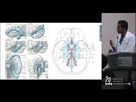 """Middle Cerebral Artery Aneurysms """"Days of Future Past"""" by Akshal Patel, M.D."""