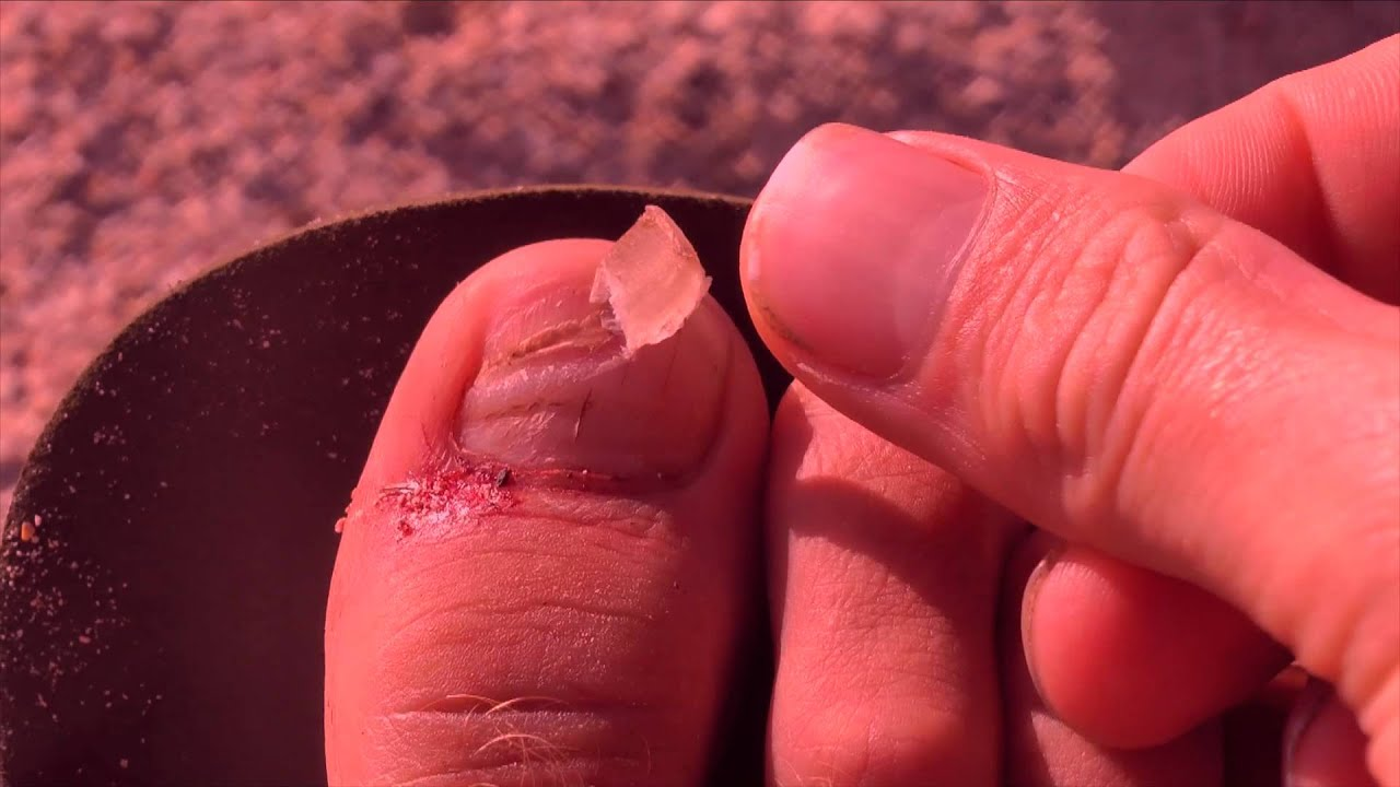 how to make a hangnail stop hurting