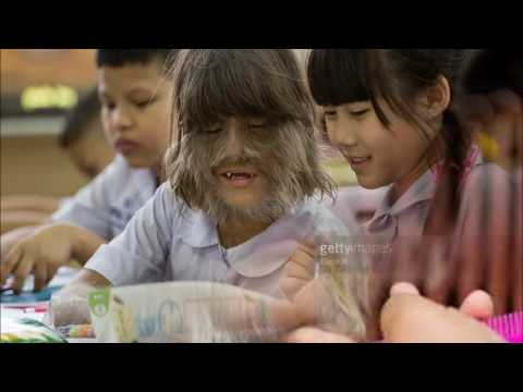 Top 10 Most Incredible Hairy People part2 Discovery Channel +News