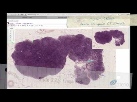 Дифференциальная диагностика лимфоидных органов. Гистологическое строение. Норма.