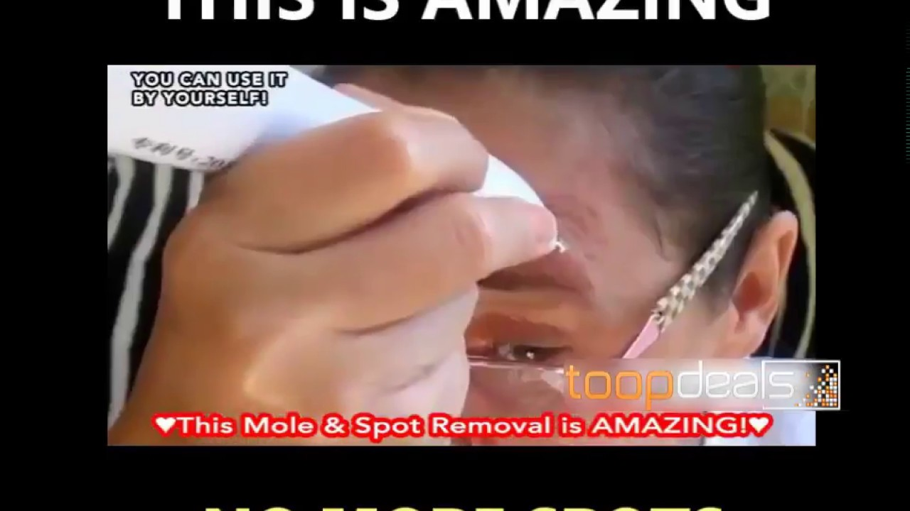 Amazing Laser Skin Tag Mole Removal Pen Review 2018 At Home Fast Removalspot Eraser Pen Youtube