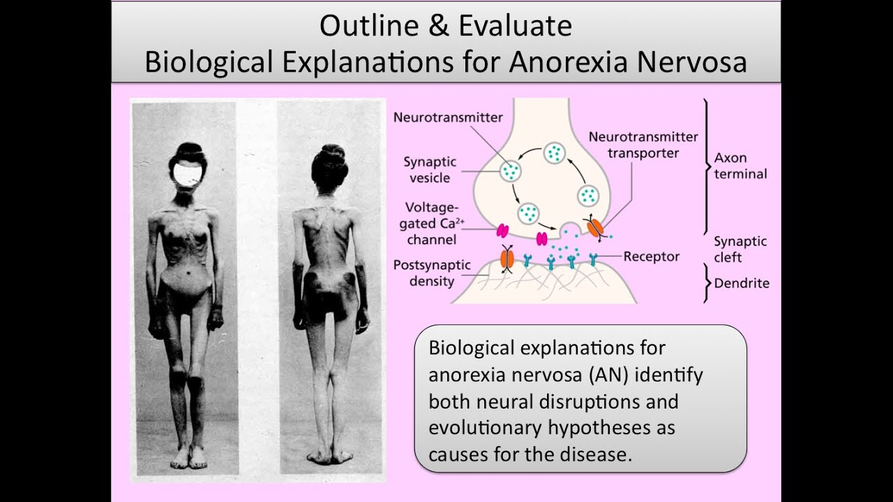 biological explanation of anorexia