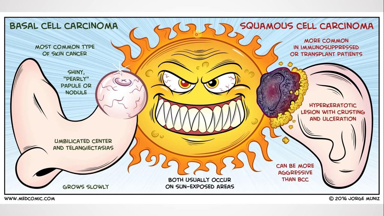 vaccin papillomavirus prix adulte spirală de vierme rotunde