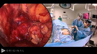 Watch the full video, for free, here! osms.it/Hirschsprung-video What is Hirschsprung disease? Hirsc.