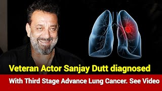 Vetran Actor Sanjay Dutt diagnosed with third stage advance lung cancer. See Video