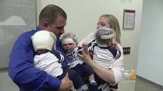 Doctors Operate On Triplets Born With Same Rare Skull Defect