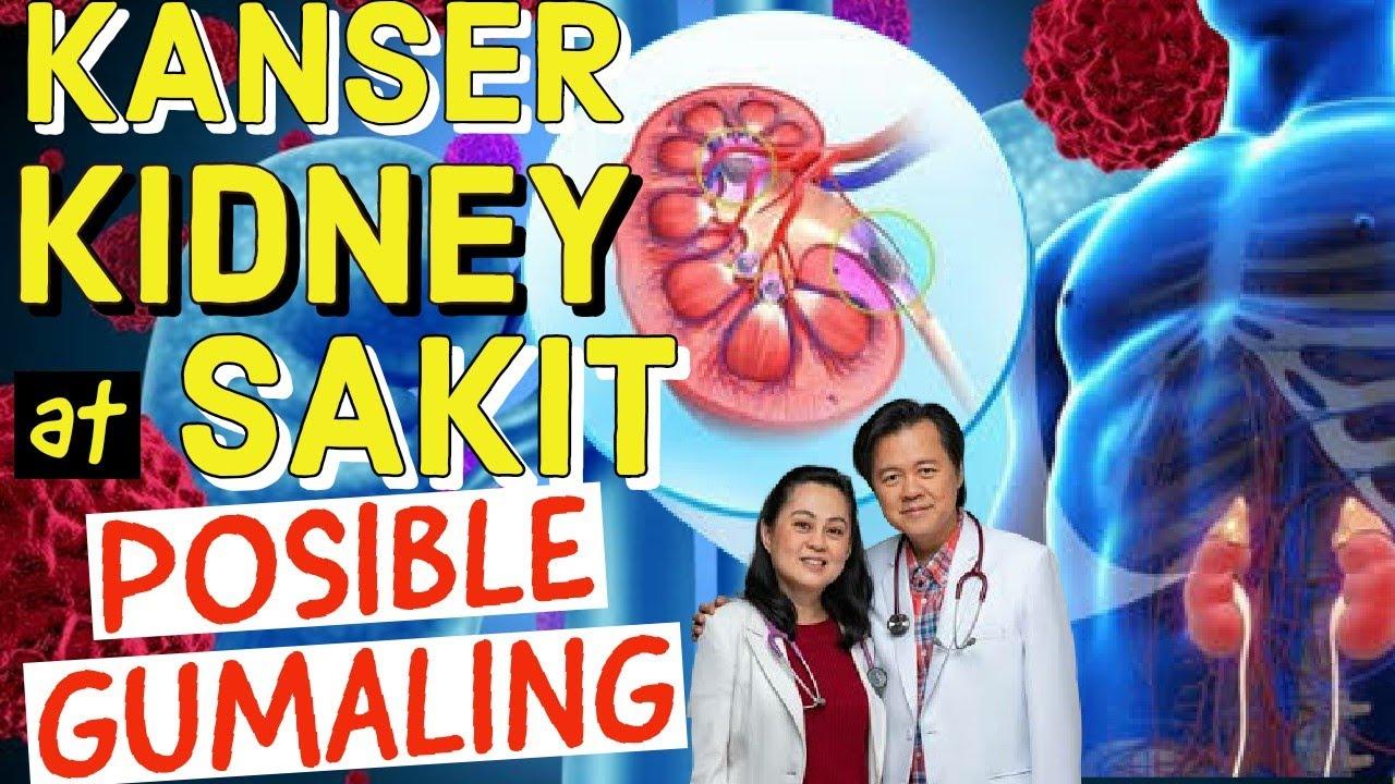 Kanser, Kidney at Sakit: Posible Gumaling - Payo ni Doc Willie Ong at Doc Liza Ramoso-Ong