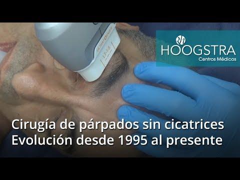 Cirugía de párpados sin cicatrices - Evolución 1995 al presente (17130)