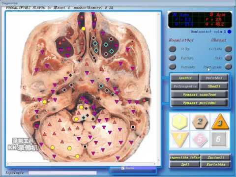 video for Czech Republic 3D NLS health analyzer for body scanner