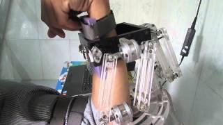 Máy phục hồi chức năng khớp khuỷu tay