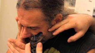 Gator Bites Face : SnakeBytesTV