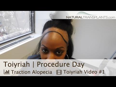 Female Hair Loss | Traction Alopecia Hair Transplant (Toiyriah)