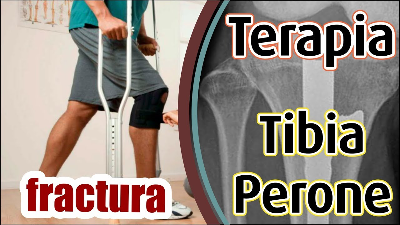 •Terapia Fractura Tibia y Perone Ejercicios Rehabilitacion