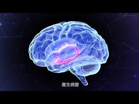 阿茲海默症 3分版