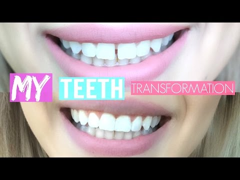 VLOG My Teeth Transformation | Dental Bonding
