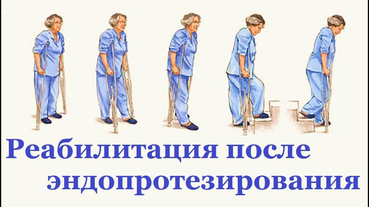 Тазобедренный сустав - это