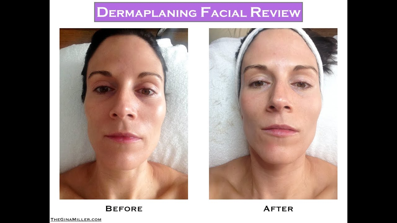 Dermaplaning Facial Review A Simple Way To Get Glowing