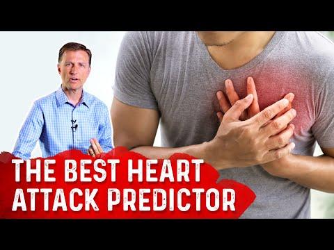 The Best Heart Attack Predictor: Coronary Artery Calcium (CAC) Scoring