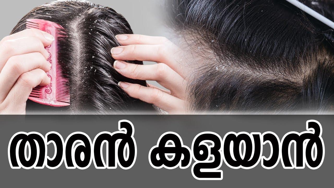 À´¤ À´°àµ» À´•à´³à´¯ Àµ»healthy Kerala Health Tips Dandruff Hair Care Hair Strong Hair Hair Tips Youtube