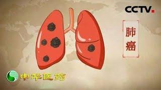 《中华医药》 20190601 爱来癌去| CCTV中文国际