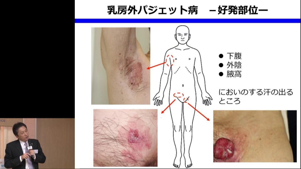 う パジェット にゅ ぼう 病 外 乳房外パジェット病 慶應義塾大学病院 KOMPAS