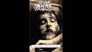 ATROFIA CEREBRAL – 'NEURONAS DESTRUIDAS' (1989) - EXTRACTO -