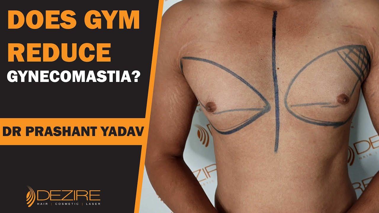 Gynecomastia Surgery by VASER Lipo & Gland Removal !! Does GYM Reduce Gynecomastia?
