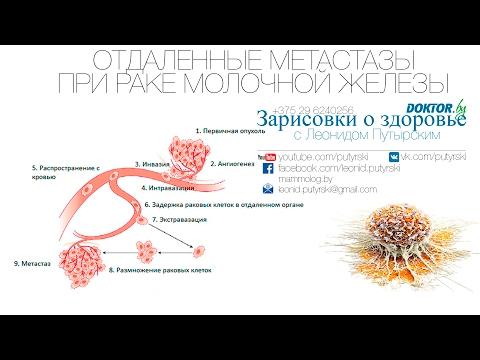 Лечение кисты молочной железы, причины возникновения