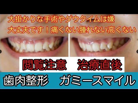 幼い頃から笑った時に歯ぐきが見えすぎるガミースマイルに悩んできました