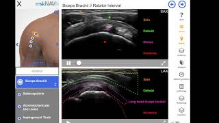 How To Learn Musculoskeletal Ultrasound Fast!