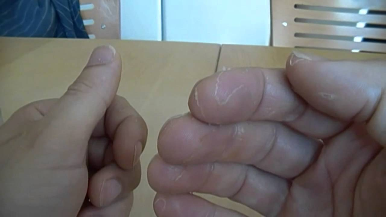 Huden fjällar på fingrarna