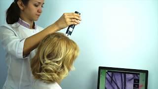 Трихоскопия – исследование волос и кожи головы