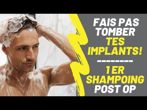 [GREFFE de CHEVEUX] FAIS PAS TOMBER TES IMPLANTS pendant le shampoing!!! MA TECHNIQUE IMPARABLE !